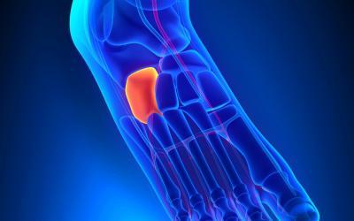 Częsty problem ze stopą, czyli ostroga piętowa górna