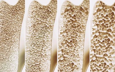 Osteoporoza – cichy złodziej kości